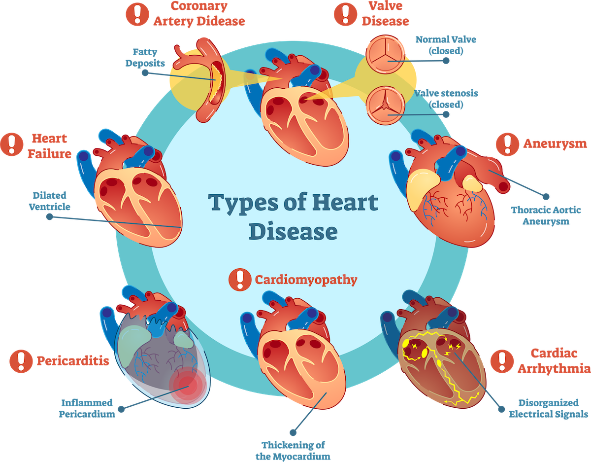 types_of_cardiovascular_disease