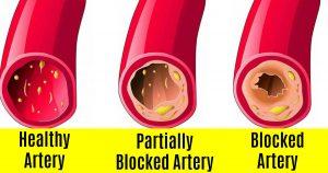 blocked_arteries